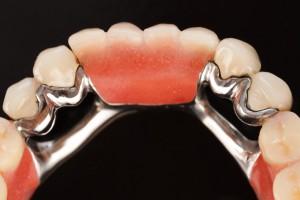 Partial Dentures, partial dentures winnipeg, partial dentures denturist, partial dentures clinic